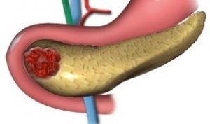 Панкреатит - враг поджелудочной железы